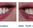 before and after dental implant photo