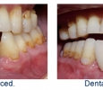 before and after dental implant photos