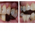 before and after dental treatment pictures