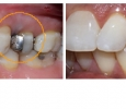 before and after dental treatment photos 25