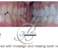 before and after dental implant and Invisalign photos