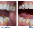 before and after dental treatment photos