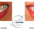 Bowmanville Dental, New Dental Bridge
