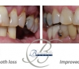 Bowmanville Dental - We can fix broken teeth.