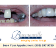 Bowmanville Dental, Missing Teeth Implants