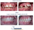 Orthodontic Treatment at Bowmanville Dental