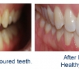 before and after Invisalign photos