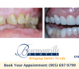 Bowmanville Dental, Invisalign, Crowns and Tooth Whitening