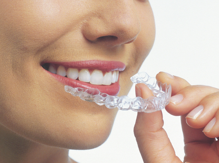 invisalign clear braces aligner