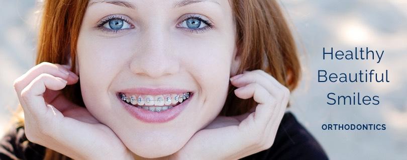 orthodontics in bowmanville fi1