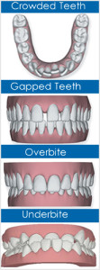 problems caused by crooked teeth