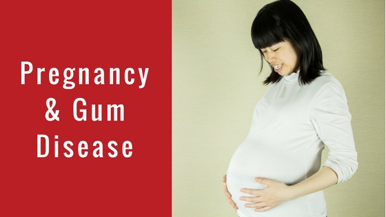 treatment for pregnant woman with bleeding gums