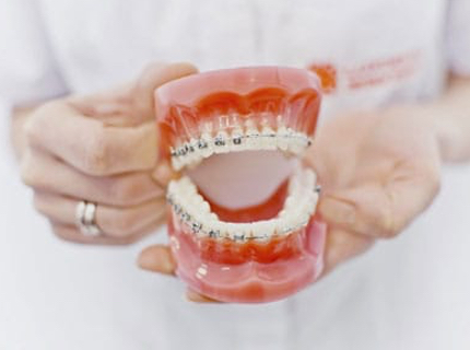 types of dental braces on typodont