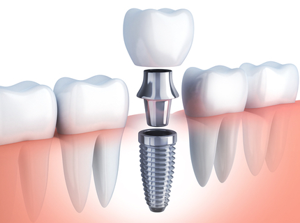 dental implant single tooth