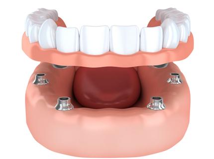 dental implant supported denture
