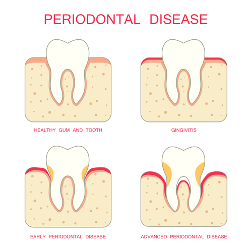 diagram of scaling and root planing for gum disease