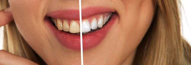 Is Laser Teeth Whitening A Safe Option Bowmanville Dental